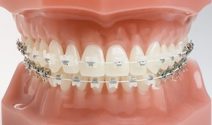 Orthodontic-ceramic-braces