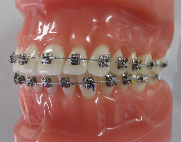Types Of Braces Yuba City Orthodontics Micheal Larson Dds