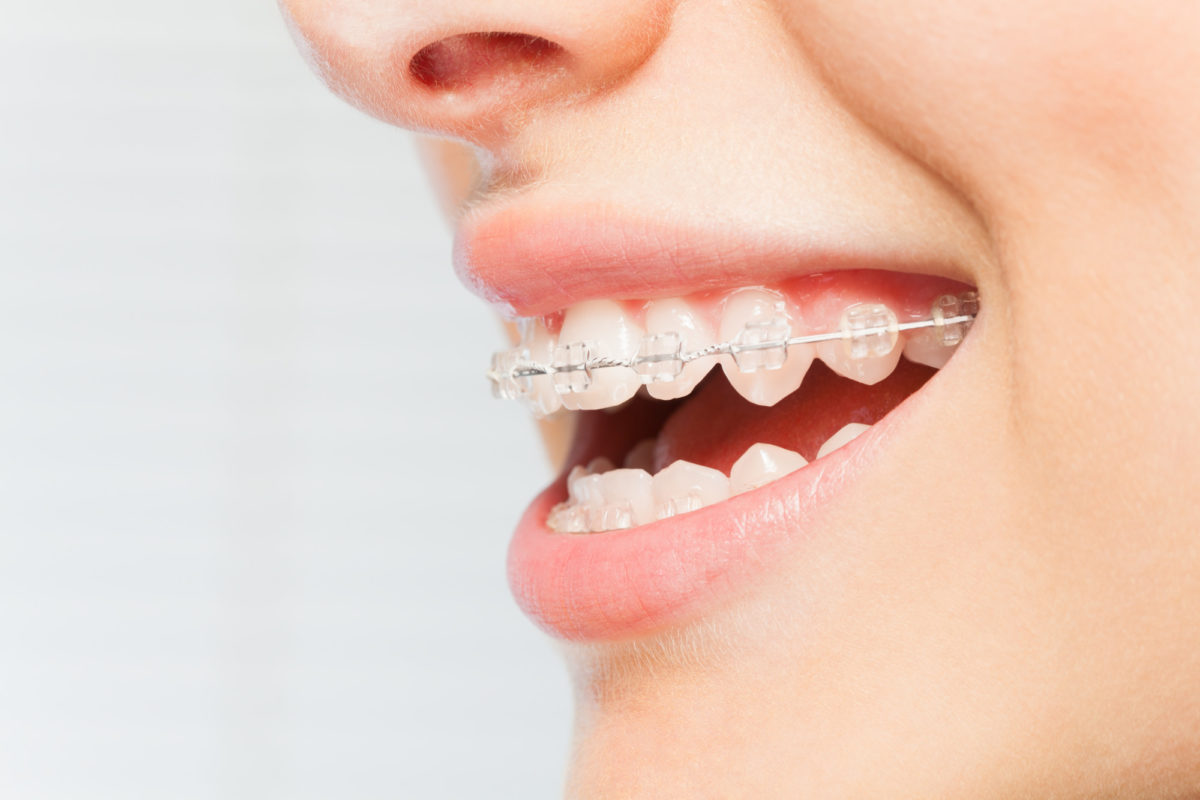 How to Brush Your Teeth With Braces: A Simple Guide