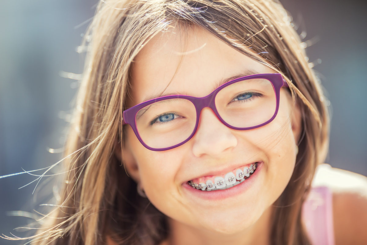 Understanding the Different Types of Braces Orthodontists Use Today