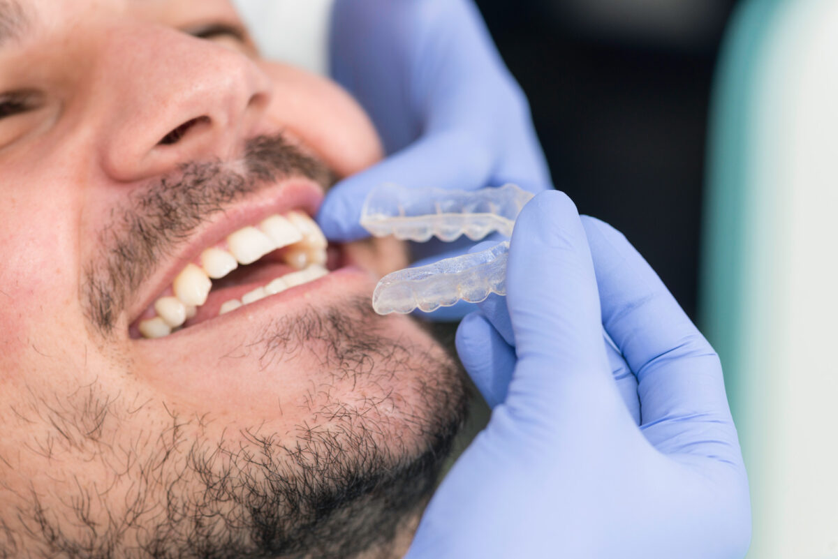 5 Things to Know About Getting Braces as an Adult
