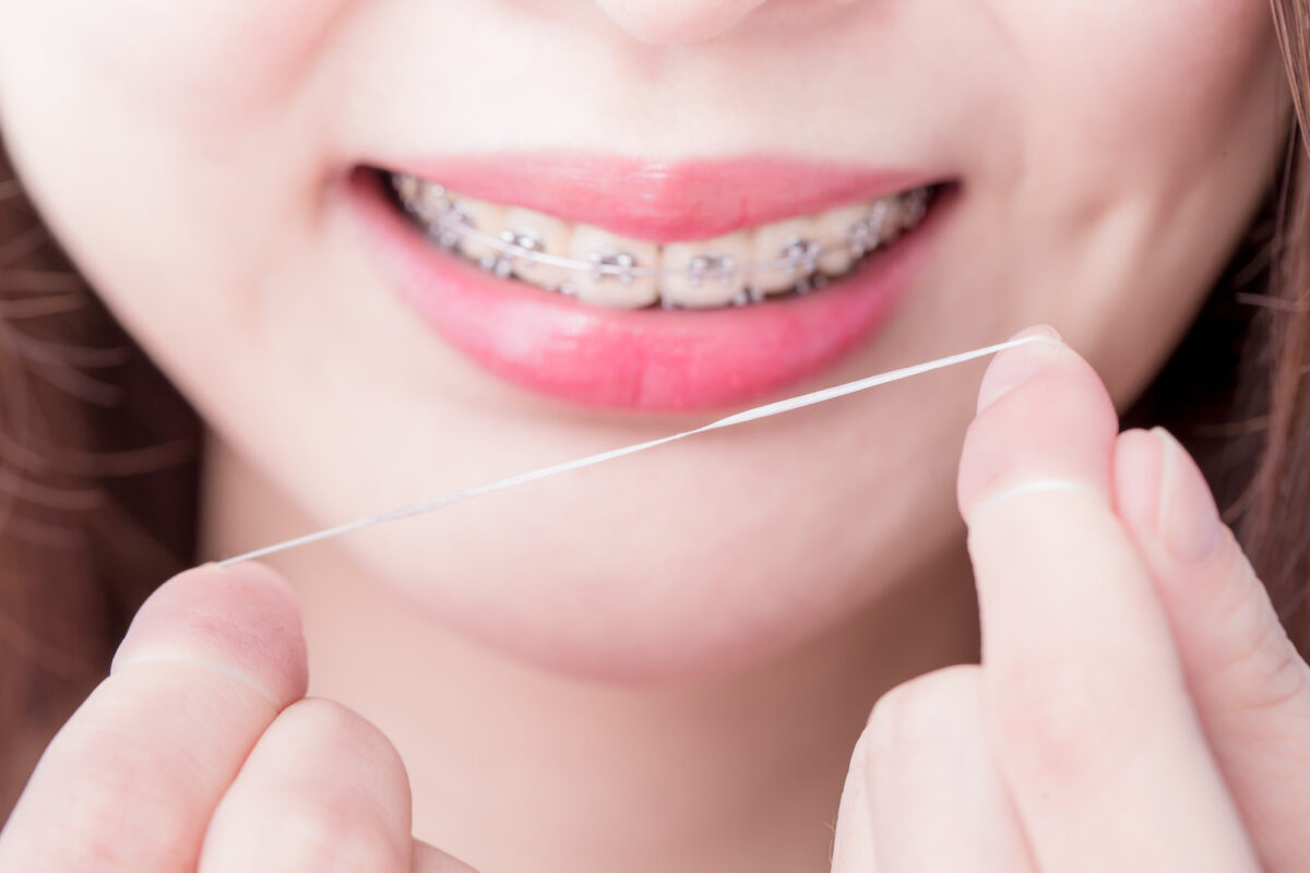How to Floss With Braces: 5 Helpful Tips