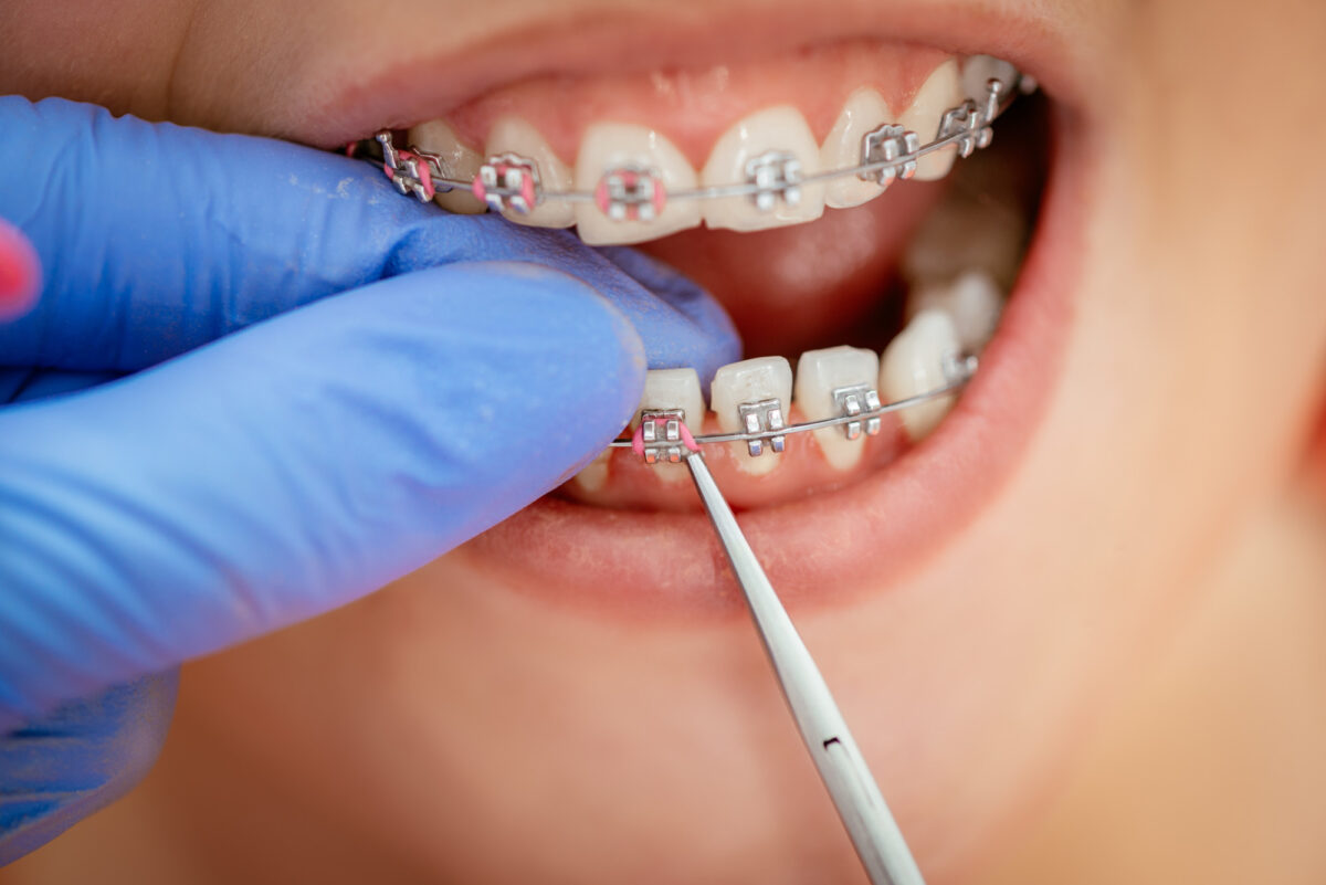 Broken Braces Bracket: This Is What You Need to Do