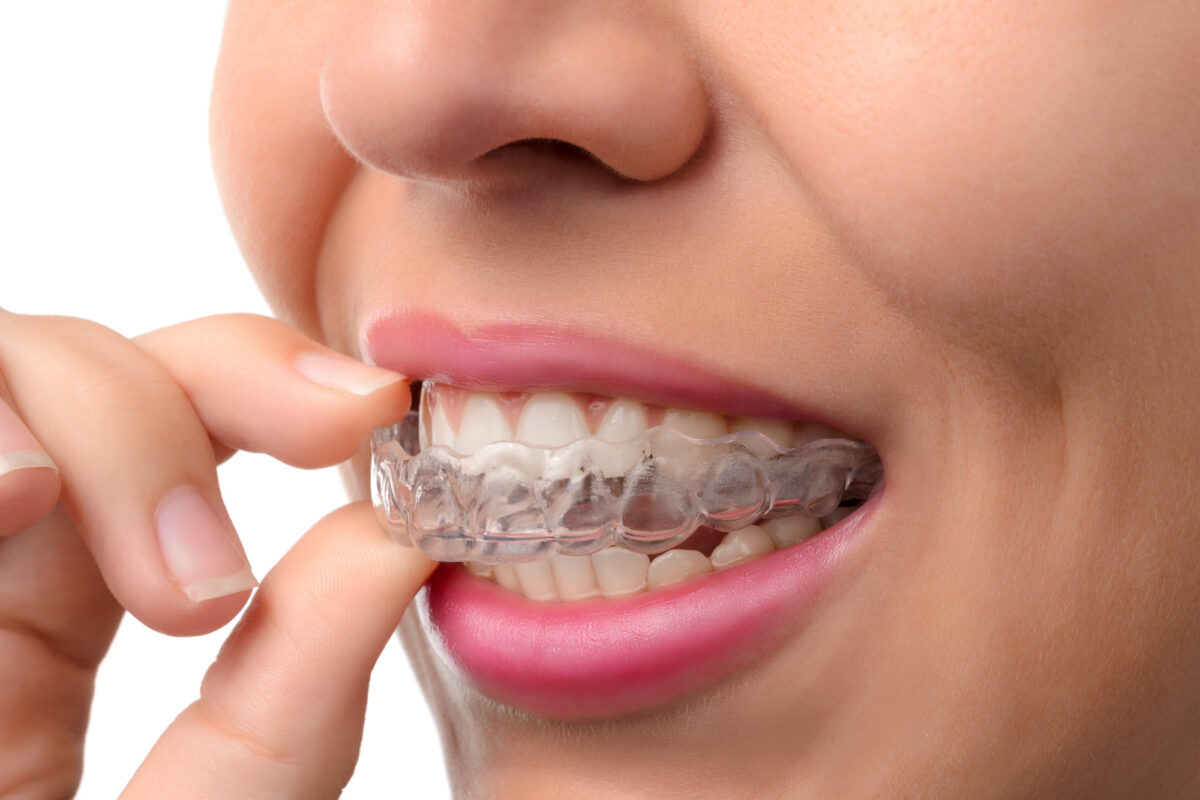 What's the Difference Between Invisalign and Braces?