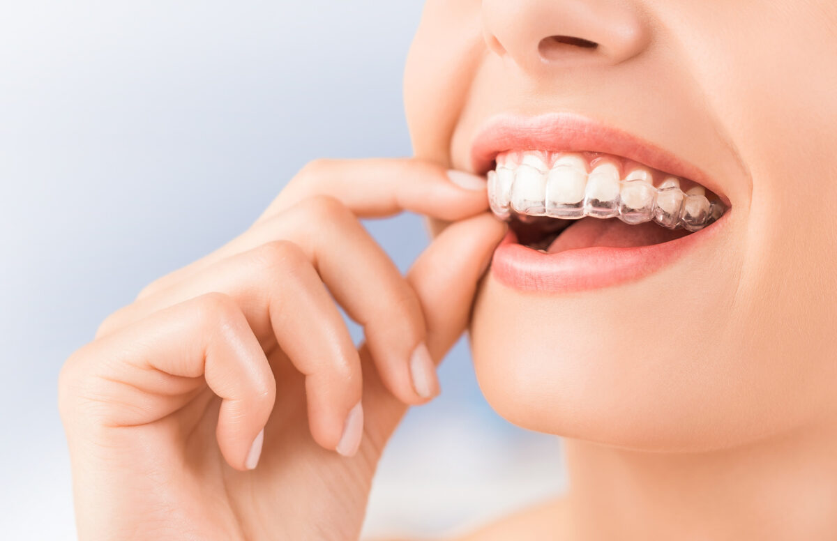 5 Incredible Benefits of Invisalign